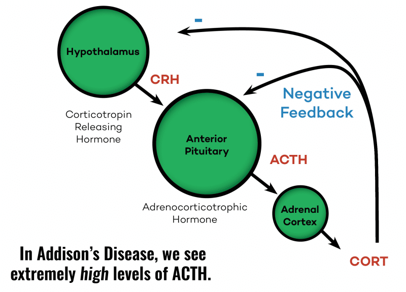 ATCH In Addisions Disease │ Is Adrenal Fatigue Real, theenergyblueprint.com