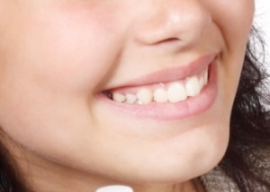 Improve Oral health with Near-Infrared and Red Light Therapy