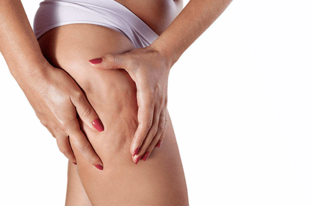 Red Light Therapy for Cellulite