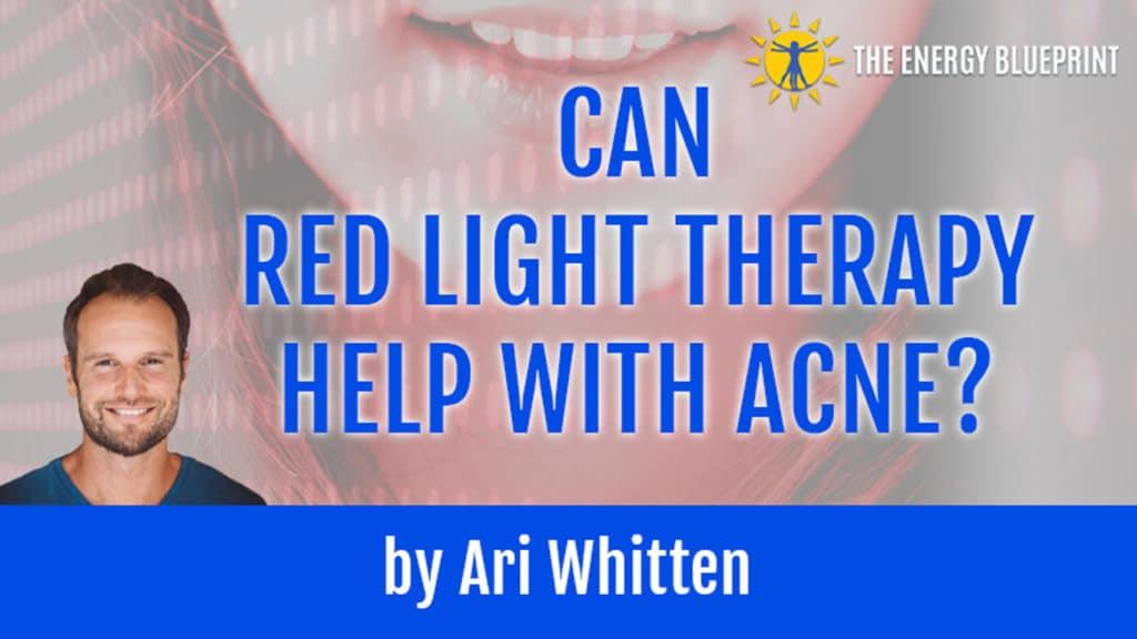 RLT and Acne