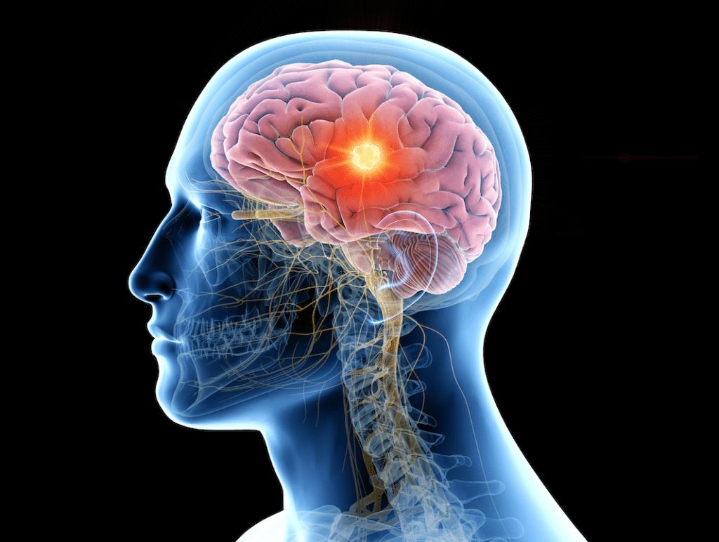 RLT for the Brain